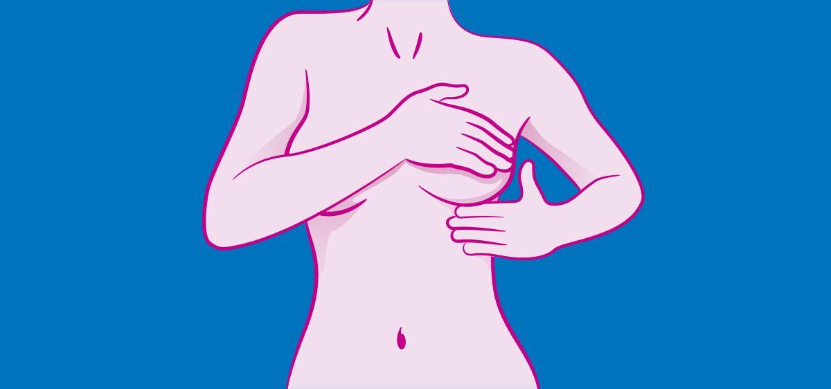 Dépistage du cancer du sein : pourquoi et comment le faire ?