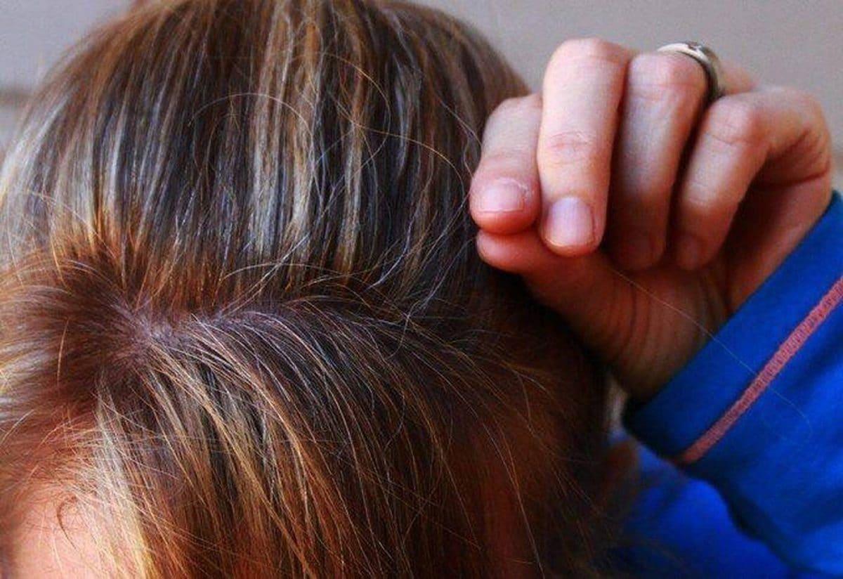 Santé mentale : le stress fait partie des facteurs qui favorisent l'apparition de cheveux gris !